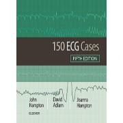 150 مسئله الکتروکاردیوگرافی ECG